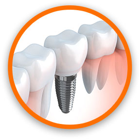 Implant Dentistry Tinley Park IL