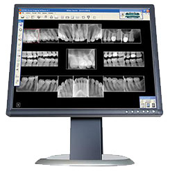 Low-Radiation Dental X-ryas Tinley Park IL