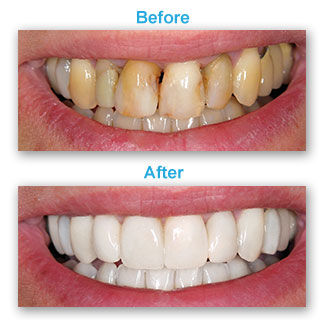 Cosmetic Dentistry Tinley Park IL